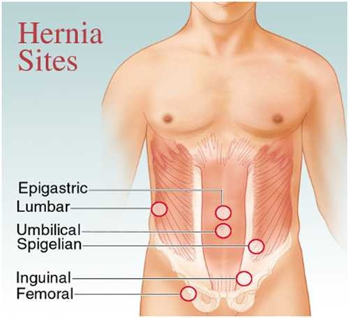 How can an umbilical hernia be reduced without an operation