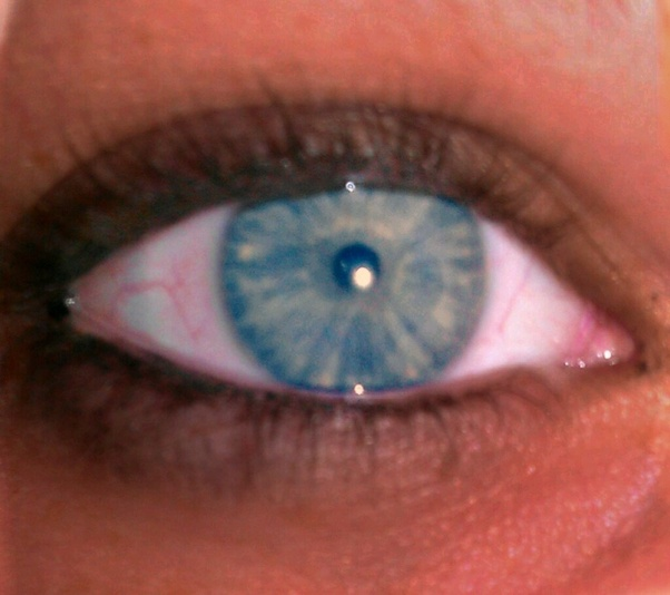 What effect on the pupils does an opiate have as opposed ...Dilated Pupils Drugs