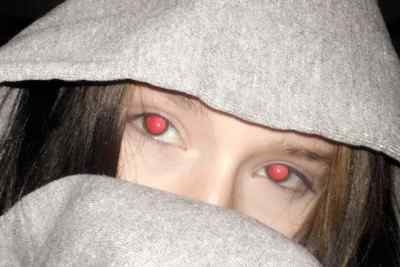 Why Do Some People Have Red Eyes In Pictures And Some Do