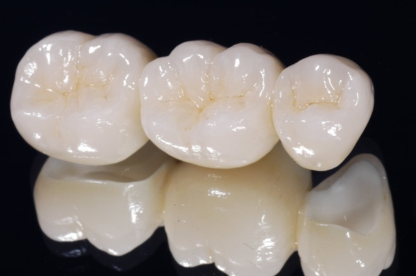 How much does a tooth crowning cost in Delhi? - Quora