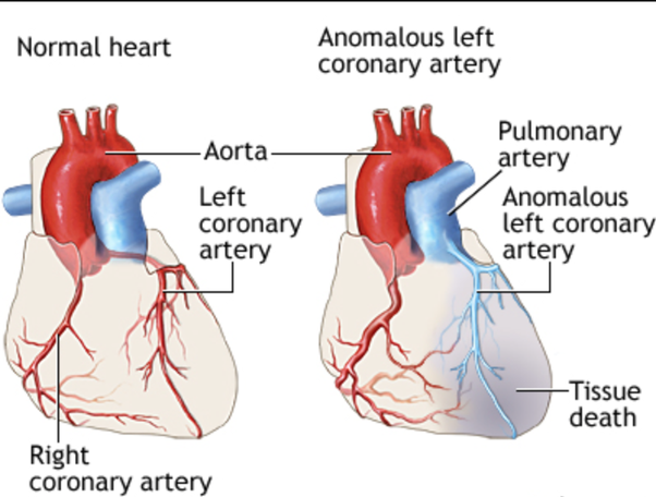 Can a 16 year old have a heart attack quora the pulmonary artery carry blue deoxygenated blood and has low perfusion pressure making them prone to heart attack at early age ccuart Image collections