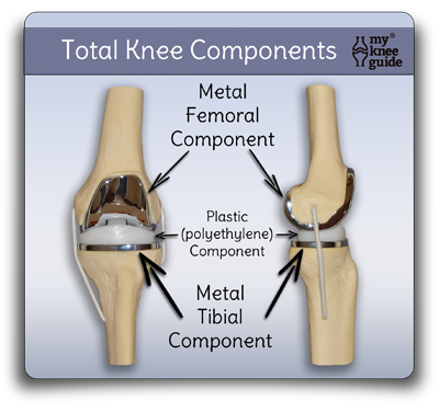 how to put on above knee prosthesis