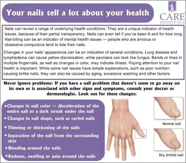 What can doctors tell about your health just by looking at your ...