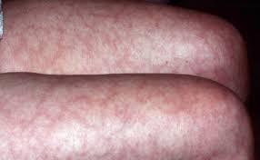 What causes livedo reticularis? - Quora