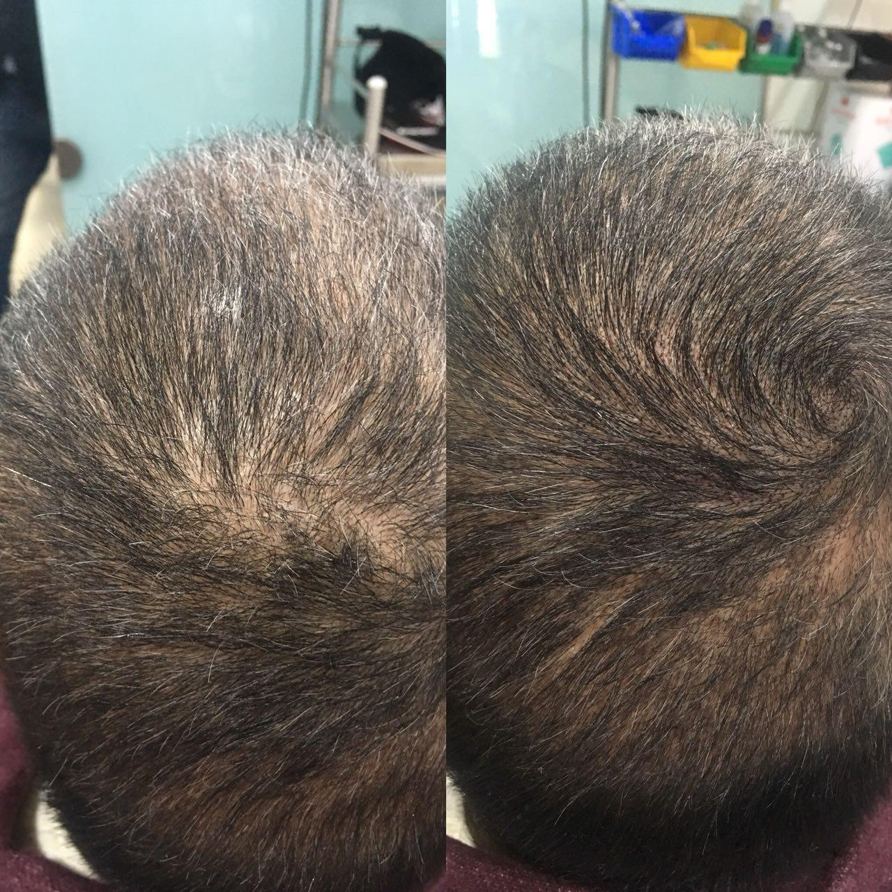 Has Anyone Had Scalp Micropigmentation To Camouflage A Hair