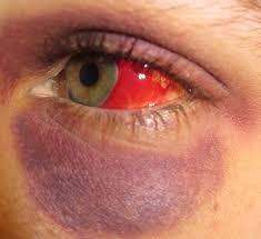 what causes bleeding behind the eye