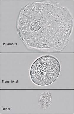 What Are The Epithelial Cells Found In Urine Quora