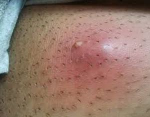 After pubic area shaving red Razor Burn