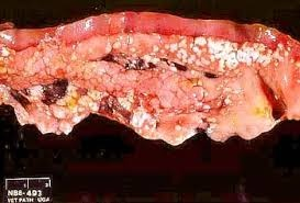 Fatty replacement of the pancreas   Image   Radiopaedia.org  Fatty Pancreas
