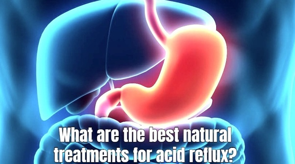 What are the best natural treatments for acid reflux? - Quora