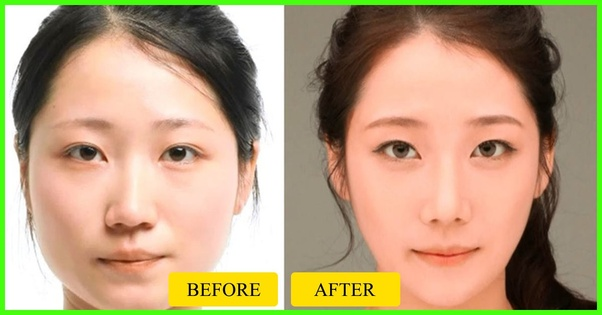 Facial bone stucture changes with aging