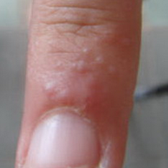 What are the tiny bumps on my fingers beneath the skin? - Quora