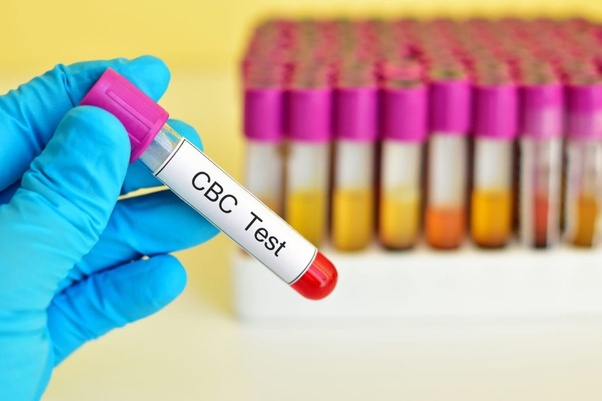 Would a CBC blood test show HIV? - Quora