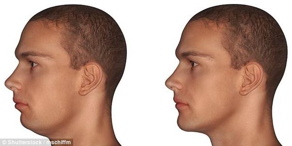 Chin exercises receding Receding Chin:
