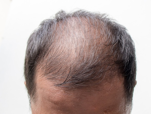 when can hair loss start