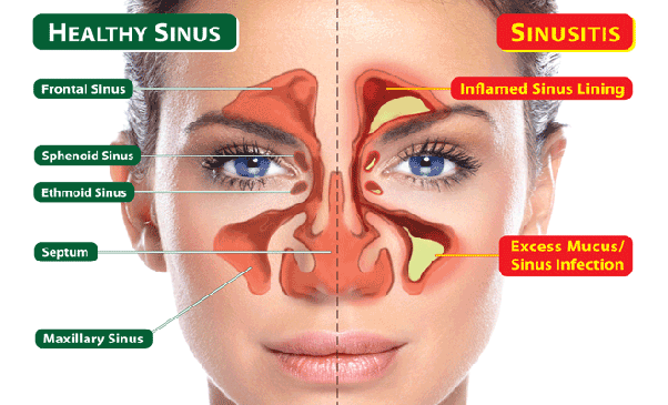 Where are pressure points for the sinuses? - Quora