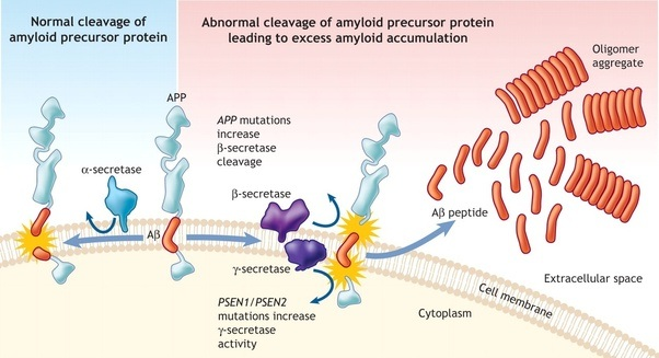 Is There A Relationship Between Amyloid Beta And Prions