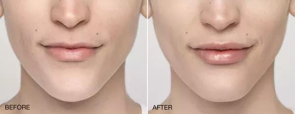 facial electrolysis cost