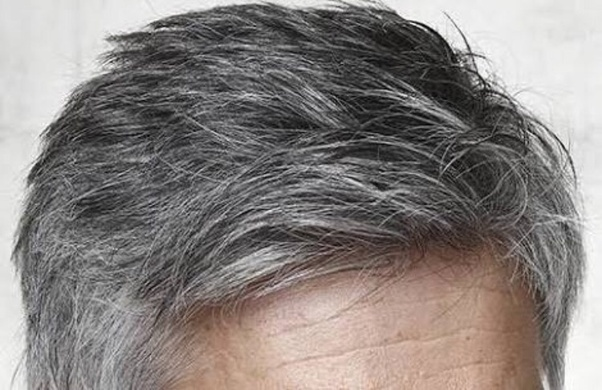 Can onion juice really reverse gray hair? - Quora