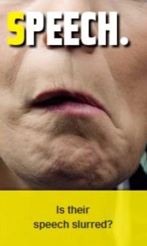 slurred speech causes - 498×832