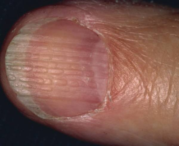 This Is Often Characterized By A Beaded Earance Of The Ridges And Sometimes Onychoschizia Splitting Nail Due To Brittleness Depending