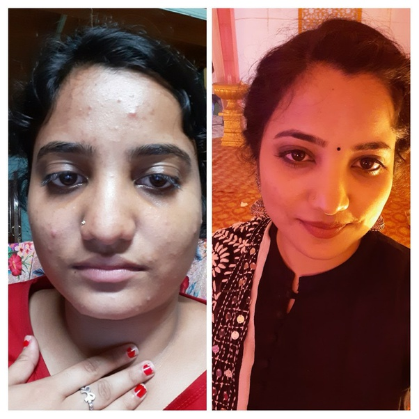 What Is The Best Treatment For Pimples And Acne Quora