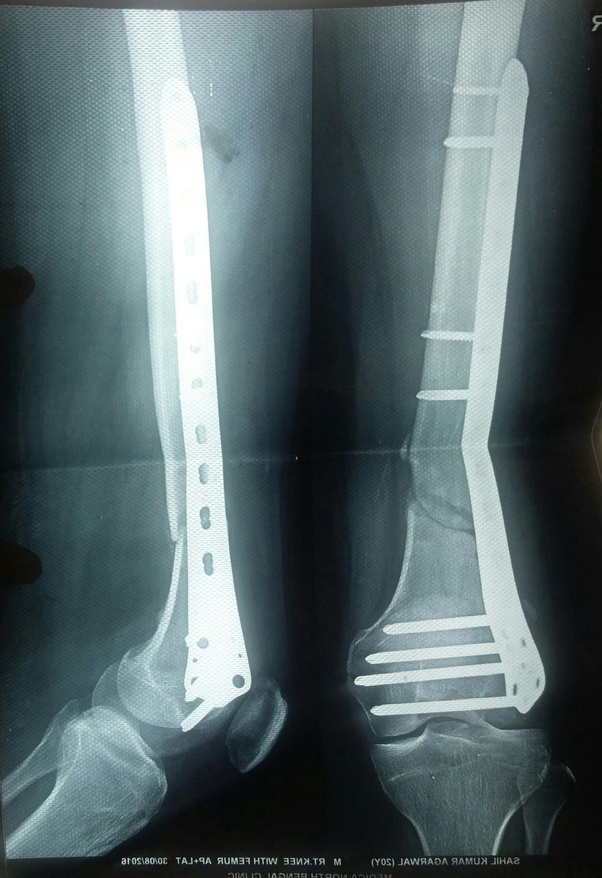 Can you walk again after a femur surgery with a plate and