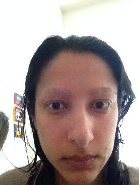 What Is It Like To Have Trichotillomania Quora