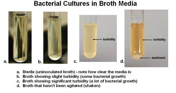 What Is Turbidity In Regards To Microbiology Quora