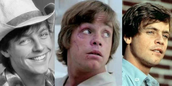Mark Hamill Before And After Car Crash