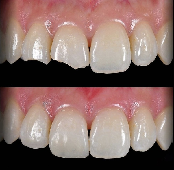 How Much Will It Cost For Bonding One Single Broken Tooth In India