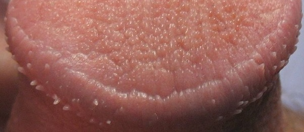 Why do i have pearly penile papules