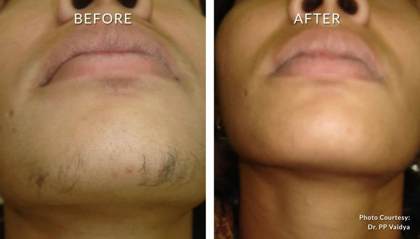 Is Laser Facial Hair Removal A Good Option Quora