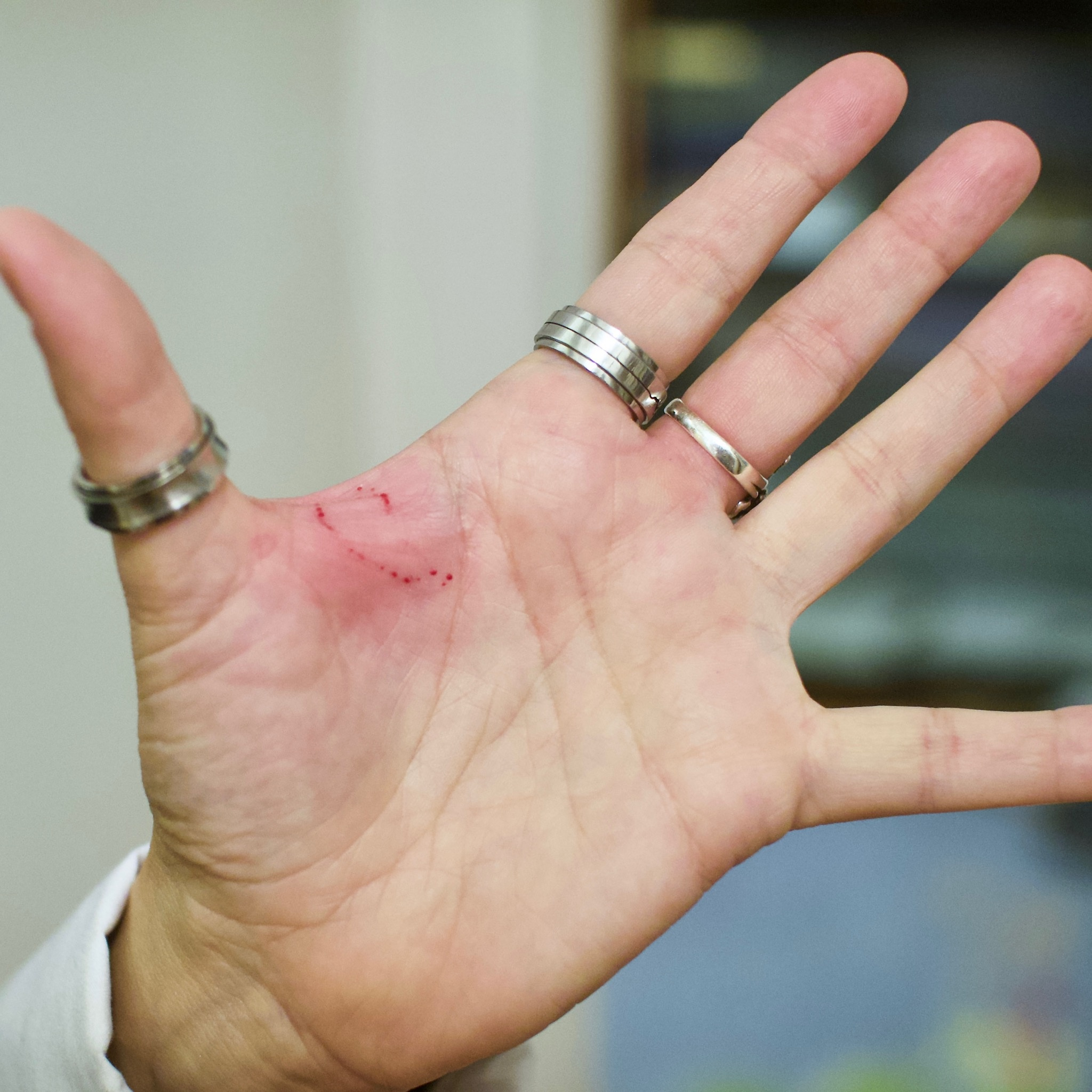Image result for how do i know if its a snake bite