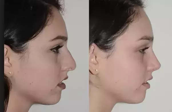 Plastic surgery to become asian dating