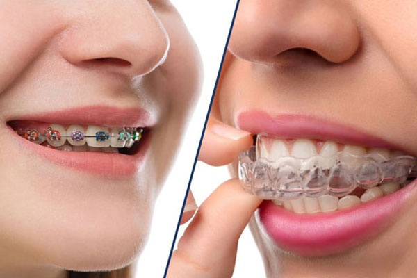 How long does it typically take for Invisalign to align ...