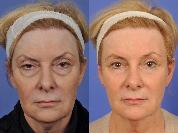 What is the recovery time for an eyelid surgery? - Quora