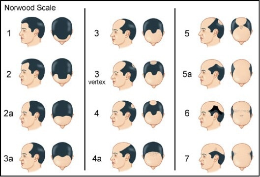 What S The Difference Between Balding And Just Having A Mature Hairline What Is The Clue That It S Legit Balding Quora