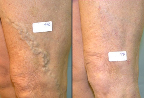 How does the spider vein removal work? - Quora