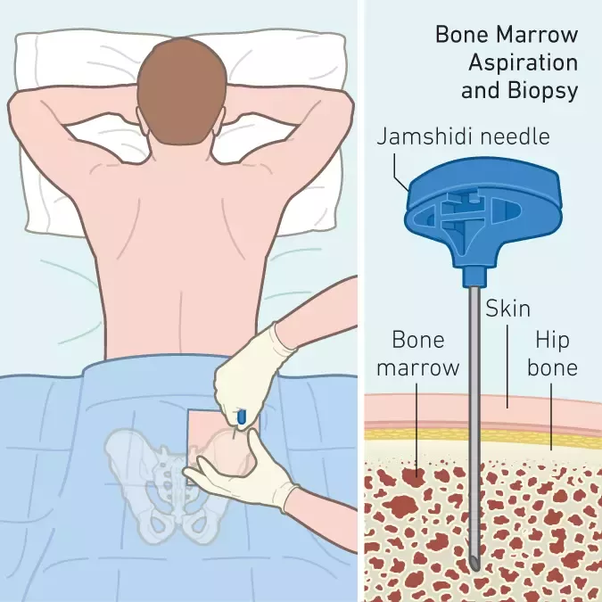 How much money it cost for bone marrow transplant? - Quora