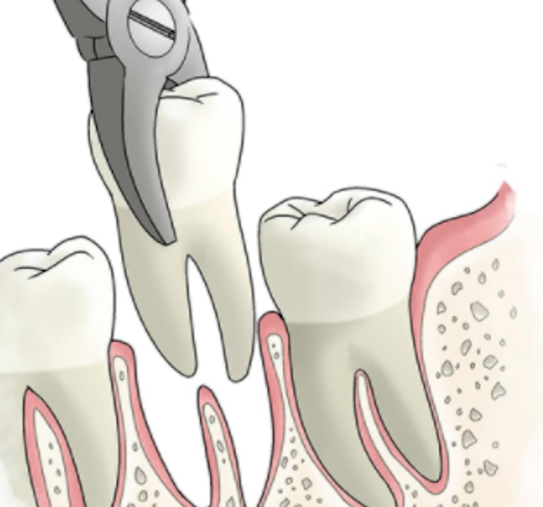If You Have Multiple Teeth That Need To Be Extracted Should You Have The Extractions Done On The Same Day Or Spread The Procedures Out Quora