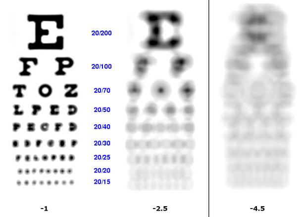 myopia mínusz 9