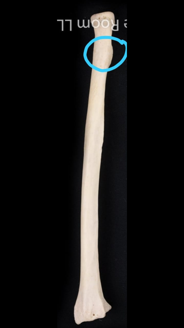How To Differentiate The Ulna And The Radius Bones In A Bone Diagram