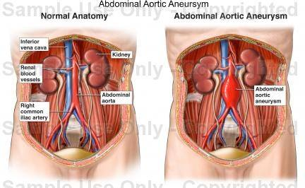 What might be causing the pulsating upper abdomen just under chest ...