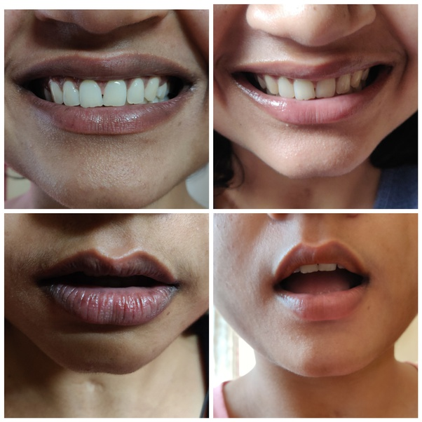 main qimg 8382c5c241fdd7bf9e97d3d3dfa7559c - How To Get Rid Of Dark Lips From Smoking Weed