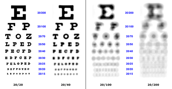 Are you legally blind with 20/60 vision? - Quora