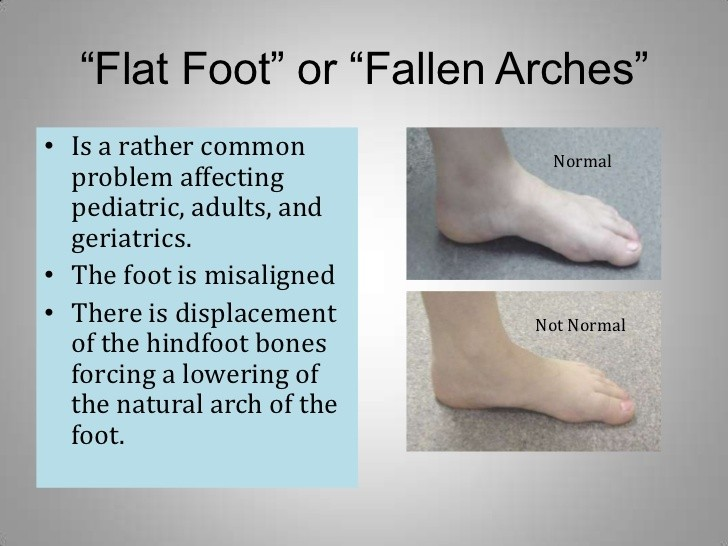What are flat feet? - Quora