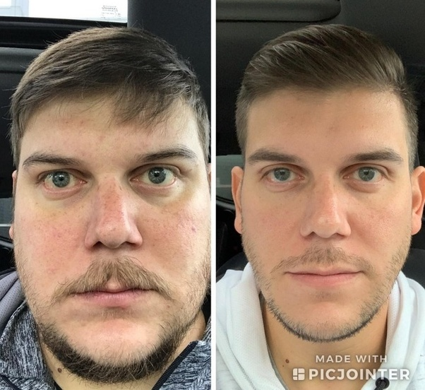 What are some of the greatest before/after photos? - Quora