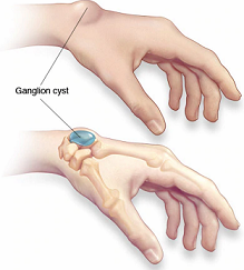 What should I do if a ganglion cyst pops? - Quora