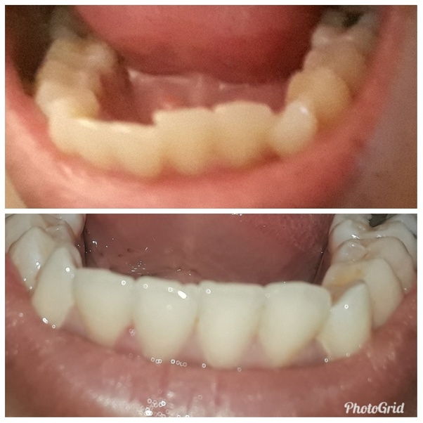 Can My Old Retainer Straighten Back My Teeth Quora